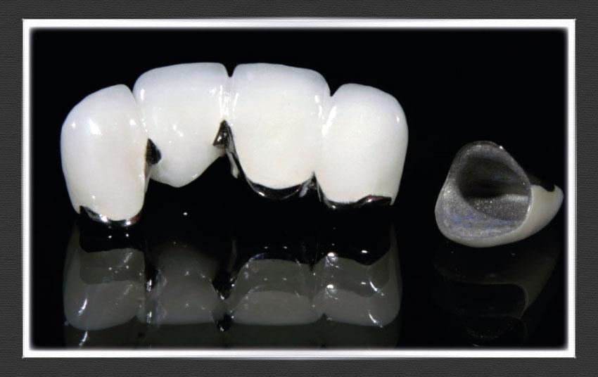 Metal Infused Porcelain Crowns